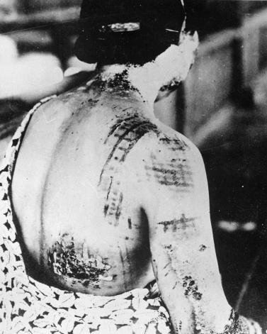 The_patient's_skin_is_burned_in_a_pattern_corresponding_to_the_dark_portions_of_a_kimono_-_NARA_-_519686
